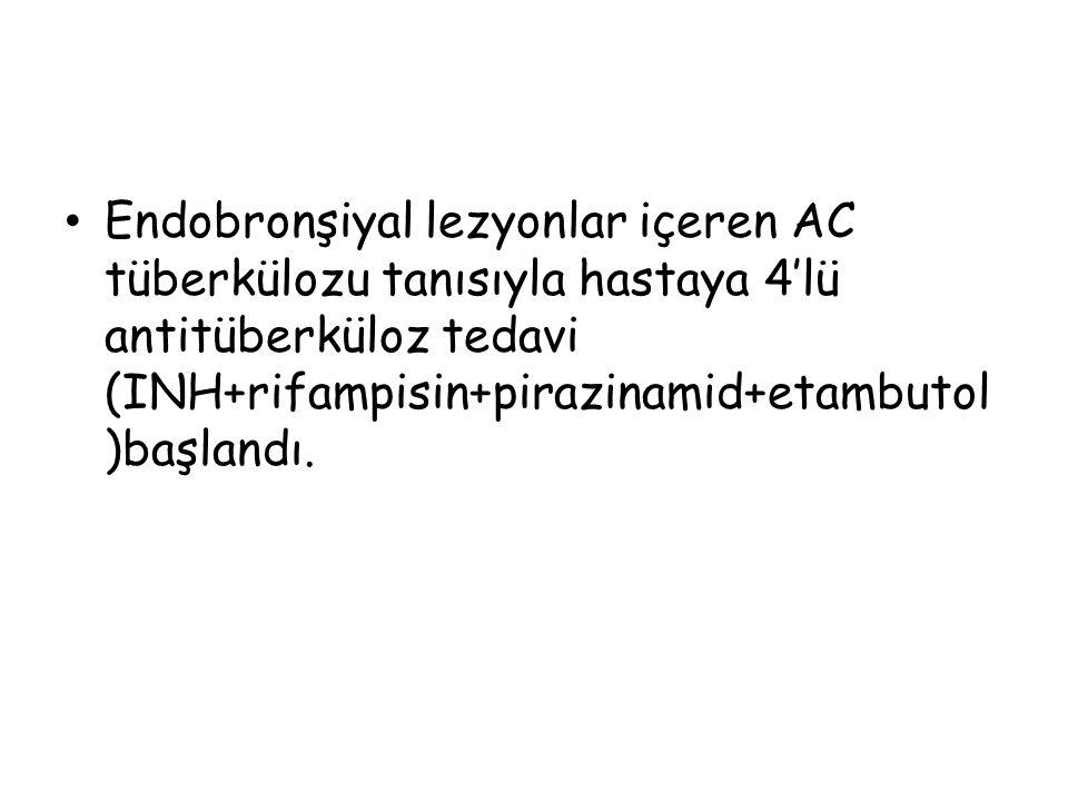 Endobronşiyal lezyonlar içeren AC tüberkülozu tanısıyla hastaya 4'lü antitüberküloz tedavi (INH+rifampisin+pirazinamid+etambutol )başlandı.