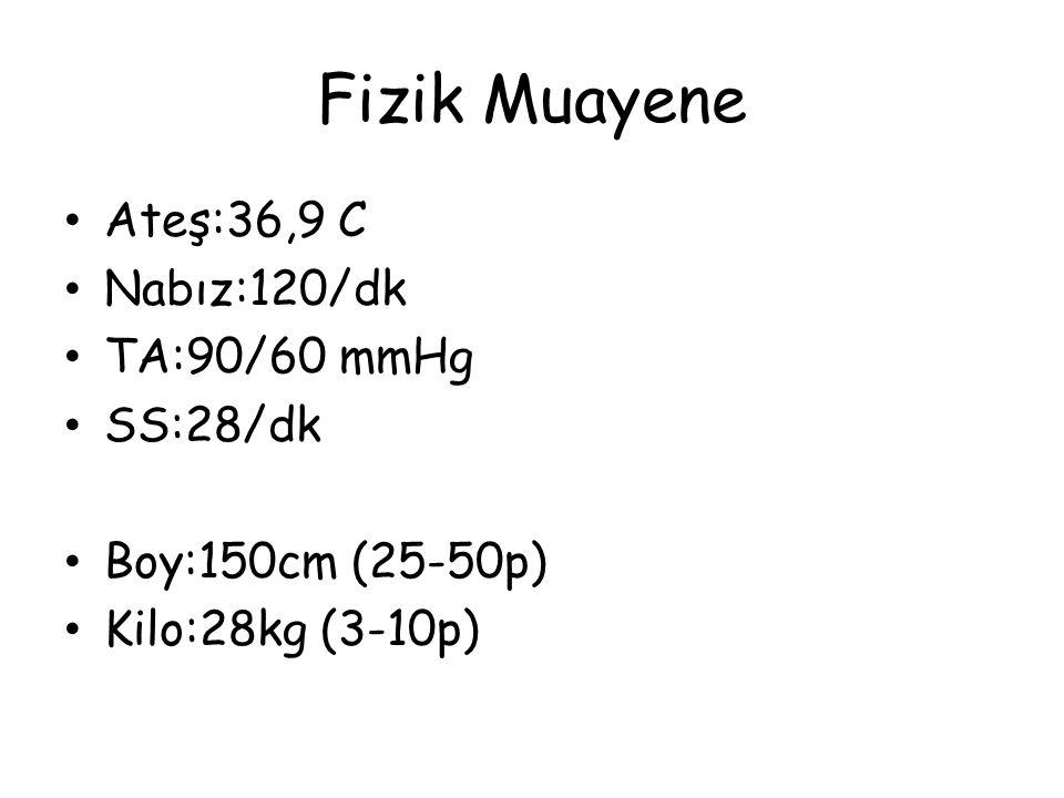 Fizik Muayene Ateş:36,9 C Nabız:120/dk TA:90/60 mmHg SS:28/dk Boy:150cm (25-50p) Kilo:28kg (3-10p)