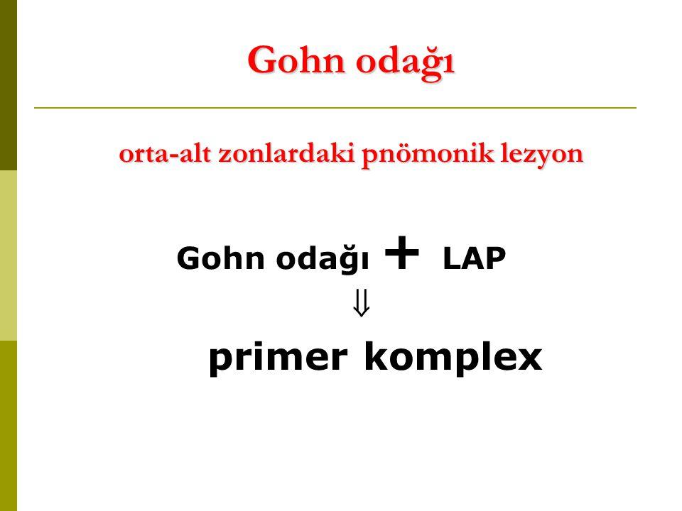 Gohn odağı orta-alt zonlardaki pnömonik lezyon Gohn odağı + LAP  primer komplex