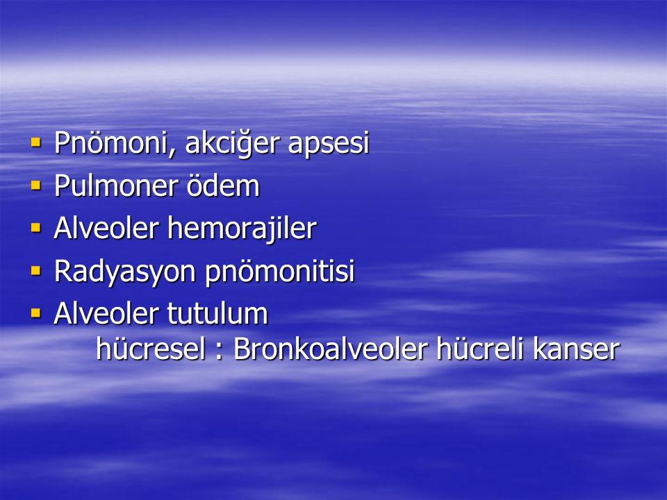  Pnömoni, akciğer apsesi  Pulmoner ödem  Alveoler hemorajiler  Radyasyon pnömonitisi  Alveoler tutulum hücresel : Bronkoalveoler hücreli kanser