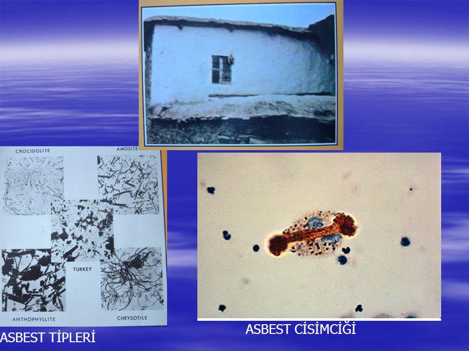 ASBEST TİPLERİ ASBEST CİSİMCİĞİ