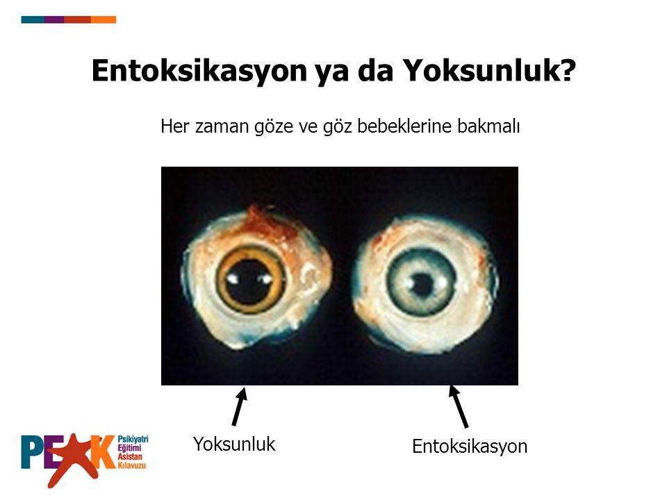 Entoksikasyon ya da Yoksunluk? Yoksunluk Entoksikasyon Her zaman göze ve göz bebeklerine bakmalı