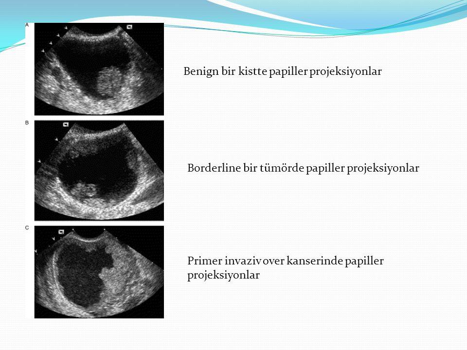 Benign bir kistte papiller projeksiyonlar Borderline bir tümörde papiller projeksiyonlar Primer invaziv over kanserinde papiller projeksiyonlar