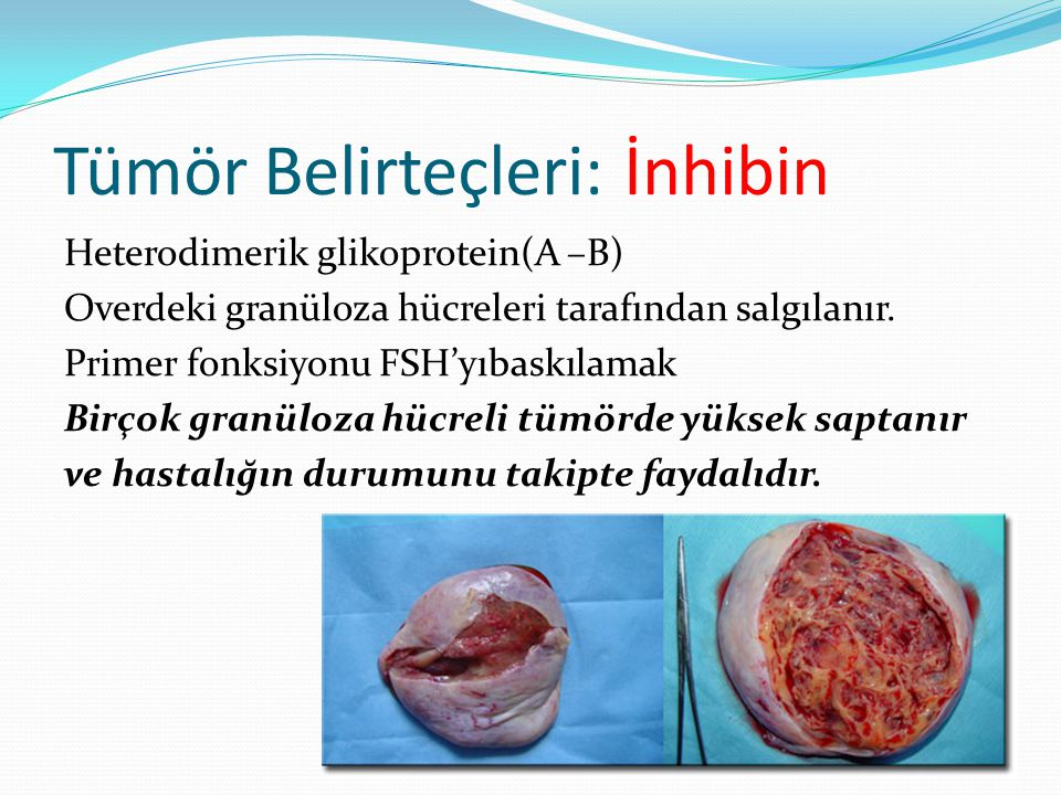 Tümör Belirteçleri: İnhibin Heterodimerik glikoprotein(A –B) Overdeki granüloza hücreleri tarafından salgılanır. Primer fonksiyonu FSH'yıbaskılamak Bi