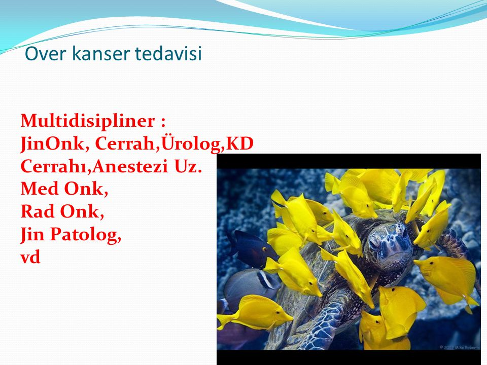 Over kanser tedavisi Multidisipliner : JinOnk, Cerrah,Ürolog,KD Cerrahı,Anestezi Uz. Med Onk, Rad Onk, Jin Patolog, vd