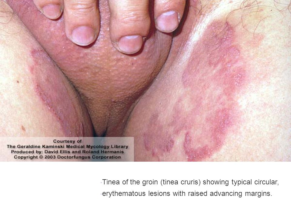 Tinea of the groin (tinea cruris) showing typical circular, erythematous lesions with raised advancing margins.