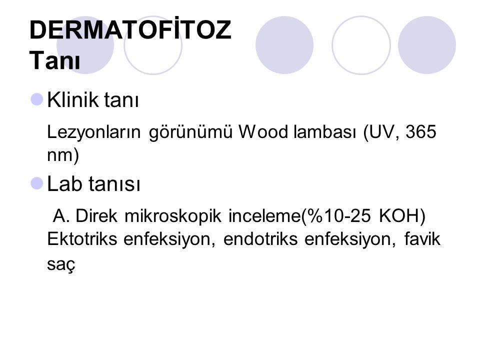DERMATOFİTOZ Tanı Klinik tanı Lezyonların görünümü Wood lambası (UV, 365 nm) Lab tanısı A. Direk mikroskopik inceleme(%10-25 KOH) Ektotriks enfeksiyon
