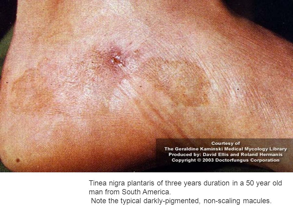 Tinea nigra plantaris of three years duration in a 50 year old man from South America. Note the typical darkly-pigmented, non-scaling macules.