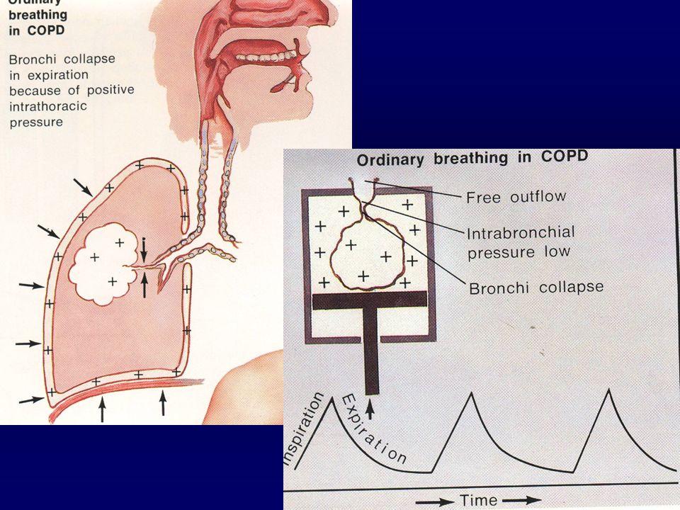 Havayolu çökmesi Alveolar dolma Obesite Düşük VA/Q Şant Hipoksi PEEP  FIO2 PEEP Surfaktan anorm Havaboşluğu dolması  Crs Post-op değişiklikler Havay