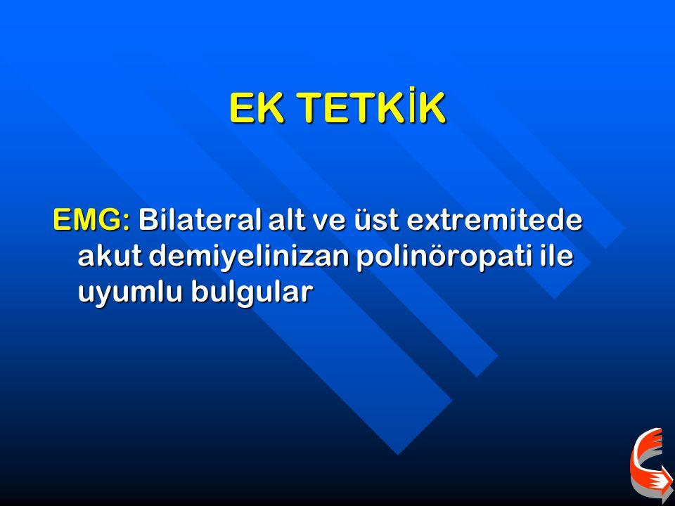 EK TETK İ K EMG: Bilateral alt ve üst extremitede akut demiyelinizan polinöropati ile uyumlu bulgular