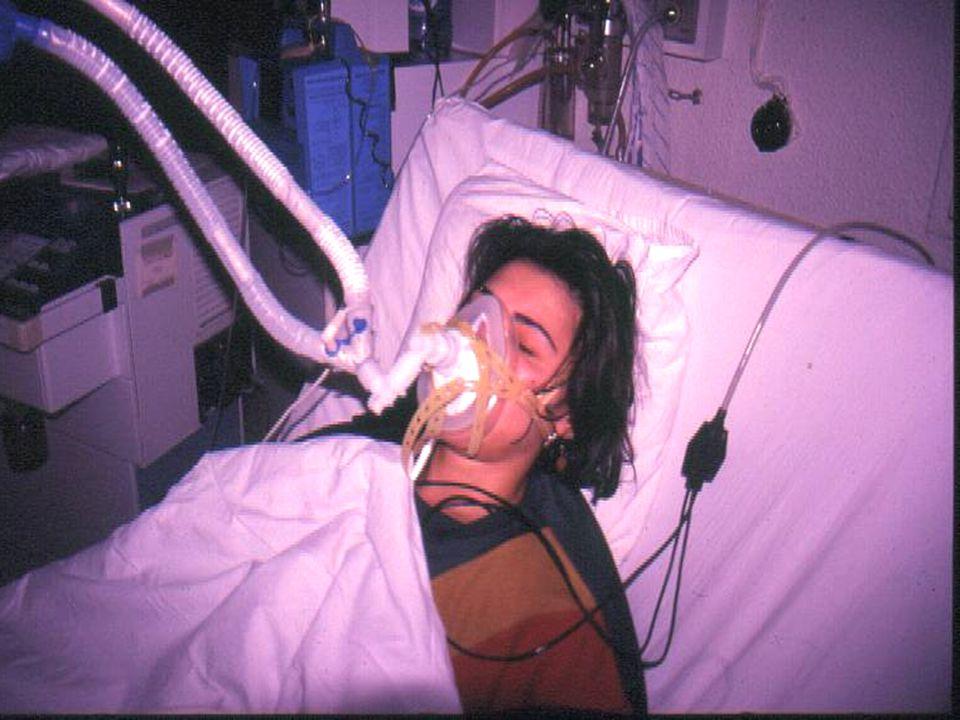 Oluşum % Maskeye bağlı Rahatsızlık30-50 Yüz cildinde eritem20-34 Klastrofobi 5-10 Nasal köprü ülserasyonu5-10 Aknesel döküntü5-10 Hava Basıncı veya ak
