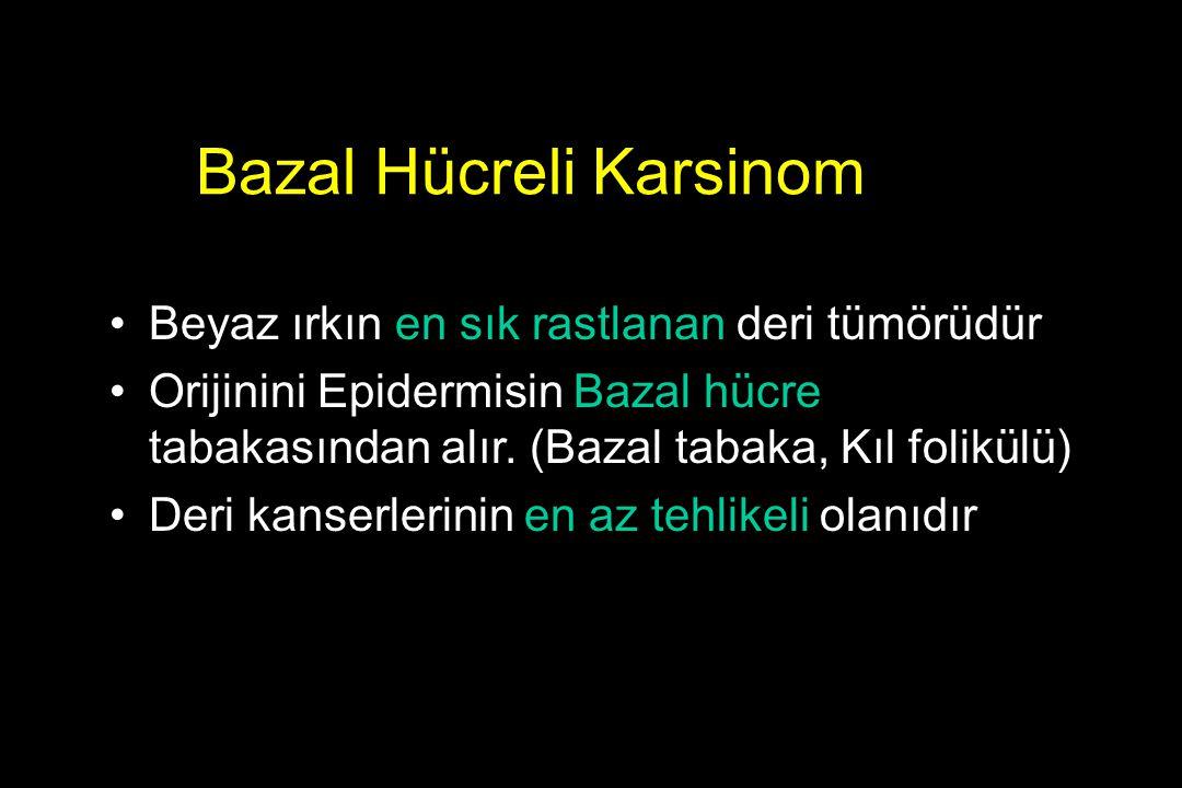 Bazal Hücreli Karsinom Beyaz ırkın en sık rastlanan deri tümörüdür Orijinini Epidermisin Bazal hücre tabakasından alır. (Bazal tabaka, Kıl folikülü) D