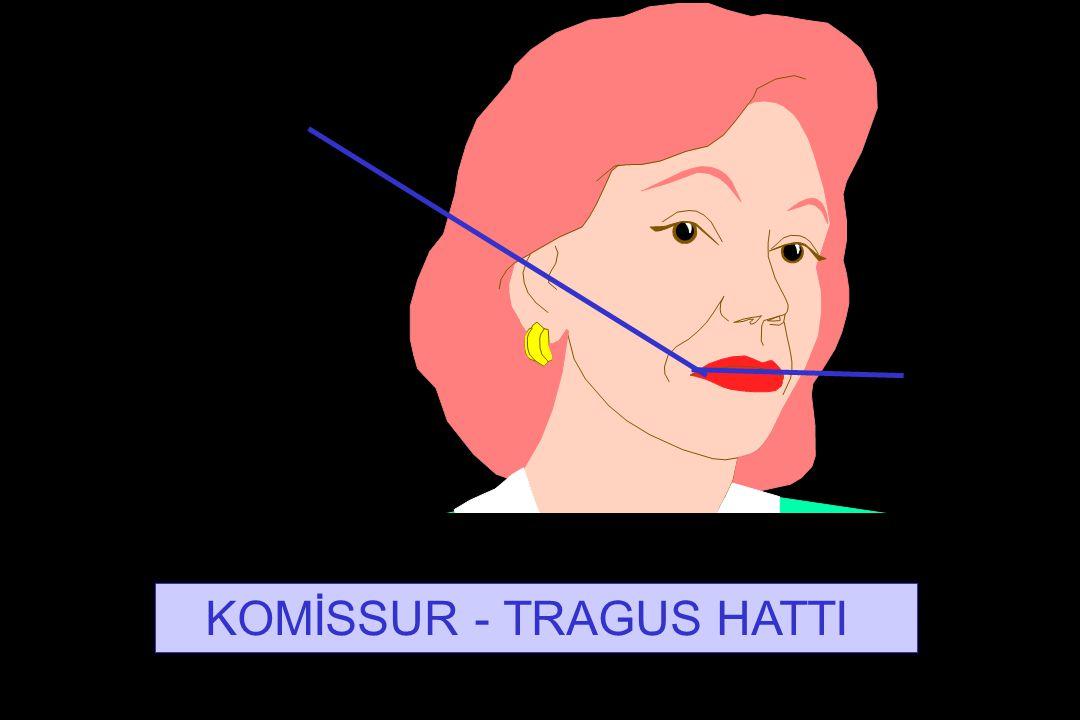 KOMİSSUR - TRAGUS HATTI