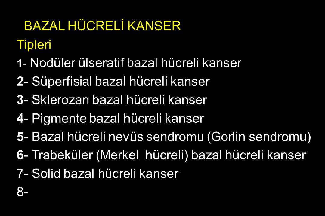 BAZAL HÜCRELİ KANSER Tipleri 1- Nodüler ülseratif bazal hücreli kanser 2- Süperfisial bazal hücreli kanser 3- Sklerozan bazal hücreli kanser 4- Pigmen