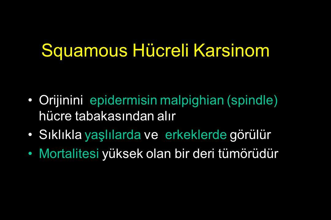 Squamous Hücreli Karsinom Orijinini epidermisin malpighian (spindle) hücre tabakasından alır Sıklıkla yaşlılarda ve erkeklerde görülür Mortalitesi yük