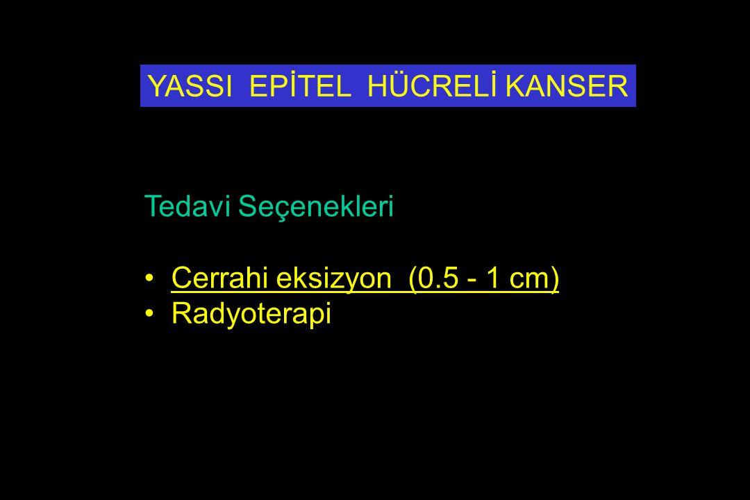 Tedavi Seçenekleri Cerrahi eksizyon (0.5 - 1 cm) Radyoterapi YASSI EPİTEL HÜCRELİ KANSER