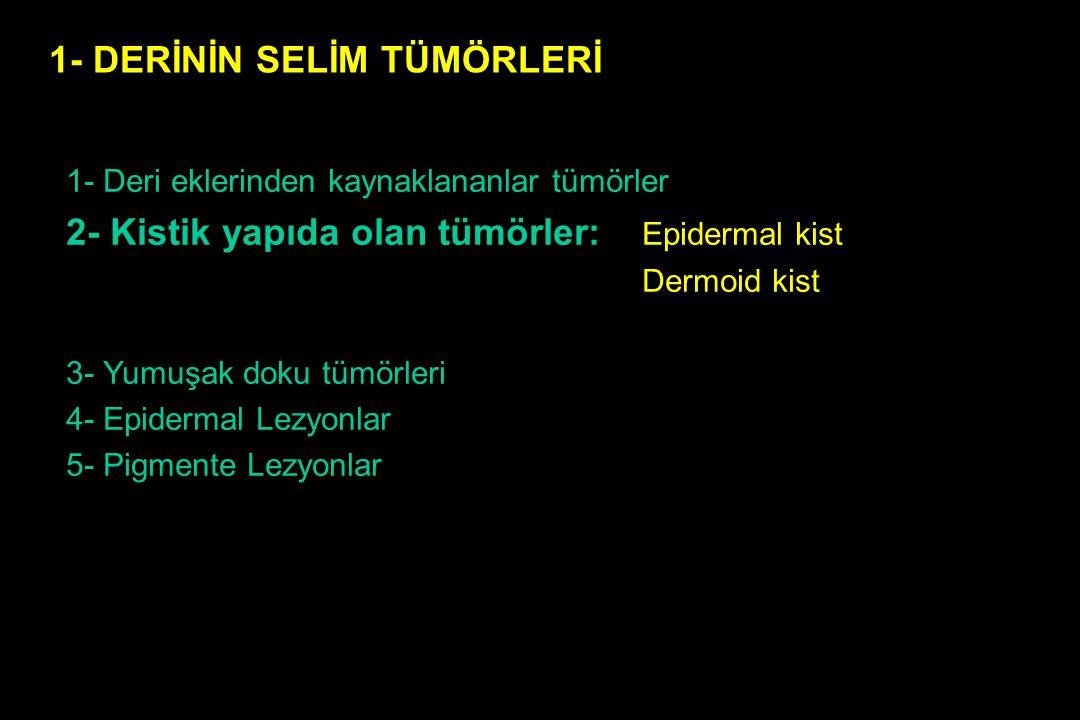 BAZAL HÜCRELİ KANSER Tipleri 1- Nodüler ülseratif bazal hücreli kanser 2- Süperfisial bazal hücreli kanser 3- Sklerozan bazal hücreli kanser 4- Pigmente bazal hücreli kanser 5- Bazal hücreli nevüs sendromu (Gorlin sendromu) 6- Trabeküler (Merkel hücreli) bazal hücreli kanser 7- Solid bazal hücreli kanser 8-