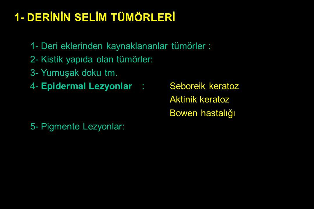 1- Deri eklerinden kaynaklananlar tümörler : 2- Kistik yapıda olan tümörler: 3- Yumuşak doku tm. 4- Epidermal Lezyonlar: Seboreik keratoz Aktinik kera