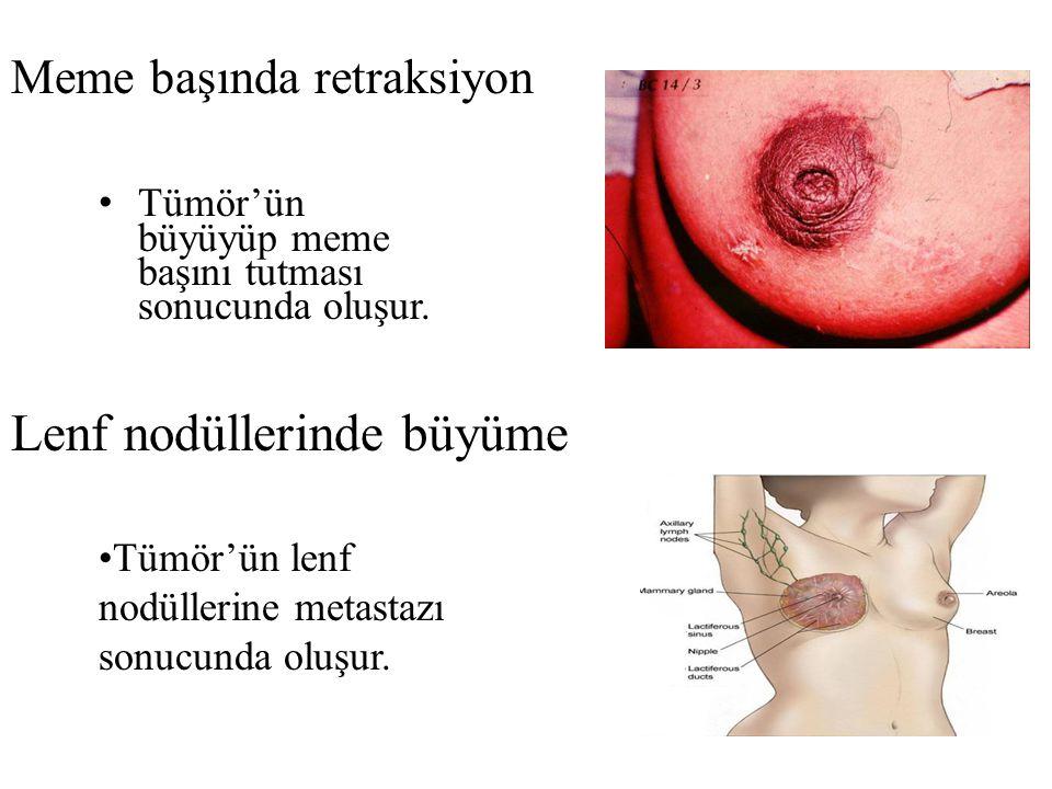 Meme başında retraksiyon Tümör'ün büyüyüp meme başını tutması sonucunda oluşur.