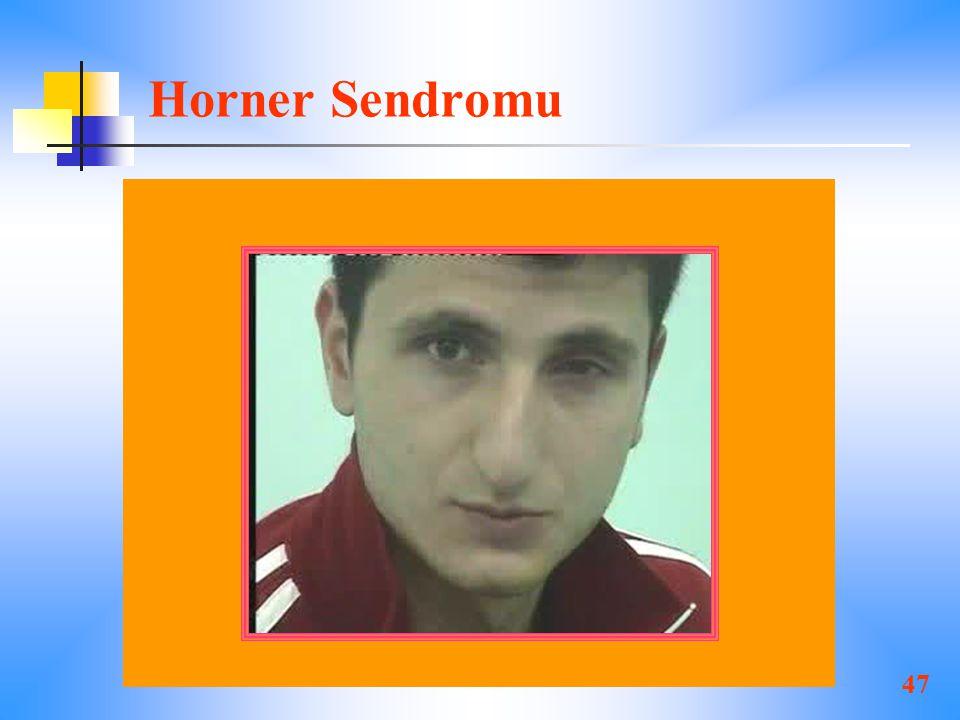 47 Horner Sendromu