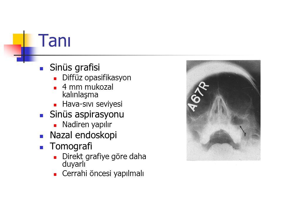 Tanı Sinüs grafisi Diffüz opasifikasyon 4 mm mukozal kalınlaşma Hava-sıvı seviyesi Sinüs aspirasyonu Nadiren yapılır Nazal endoskopi Tomografi Direkt