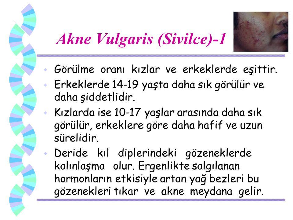 Akne Vulgaris (Sivilce)-1 w Görülme oranı kızlar ve erkeklerde eşittir. w Erkeklerde 14-19 yaşta daha sık görülür ve daha şiddetlidir. w Kızlarda ise