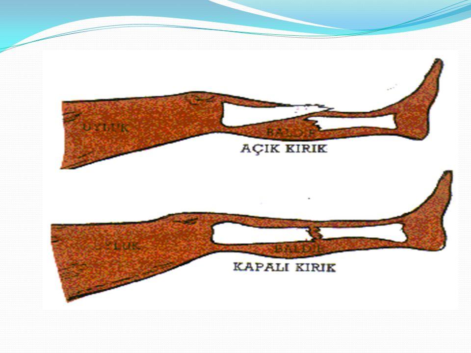 Üst kol kırıklarında; Kolun omzuna yakın üst kısmında kırık varsa,koltukaltına bir bez ya da havlu ile destekleyin Kırık kısmın dış kısmına sert bir destek yerleştirin Önkolu bir bezle boyna asın Üst kolu vucuda sabitleyin