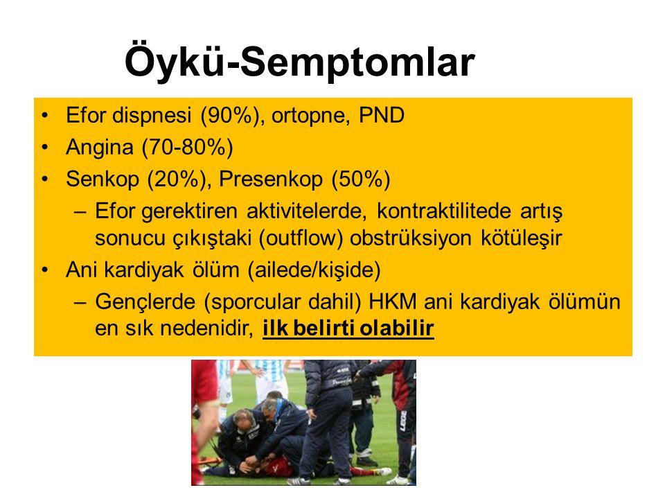 Efor dispnesi (90%), ortopne, PND Angina (70-80%) Senkop (20%), Presenkop (50%) –Efor gerektiren aktivitelerde, kontraktilitede artış sonucu çıkıştaki