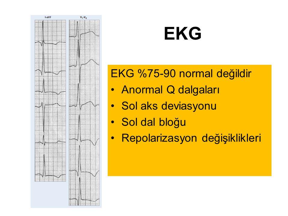 EKG EKG %75-90 normal değildir Anormal Q dalgaları Sol aks deviasyonu Sol dal bloğu Repolarizasyon değişiklikleri