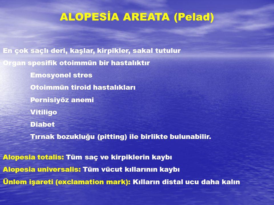 ALOPESİA AREATA (Pelad) En çok saçlı deri, kaşlar, kirpikler, sakal tutulur Organ spesifik otoimmün bir hastalıktır Emosyonel stres Otoimmün tiroid ha