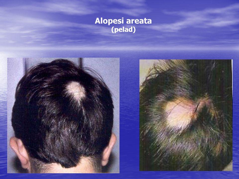 Alopesi areata (pelad)