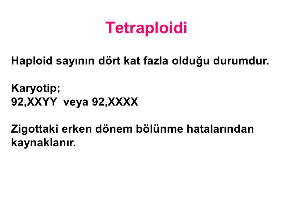 Tetraploidi Haploid sayının dört kat fazla olduğu durumdur. Karyotip; 92,XXYY veya 92,XXXX Zigottaki erken dönem bölünme hatalarından kaynaklanır.
