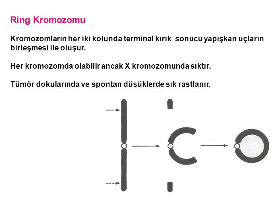 Ring Kromozomu Kromozomların her iki kolunda terminal kırık sonucu yapışkan uçların birleşmesi ile oluşur. Her kromozomda olabilir ancak X kromozomund