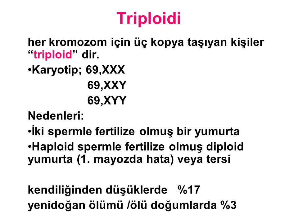 """Triploidi her kromozom için üç kopya taşıyan kişiler """"triploid"""" dir. Karyotip; 69,XXX 69,XXY 69,XYY Nedenleri: İki spermle fertilize olmuş bir yumurta"""