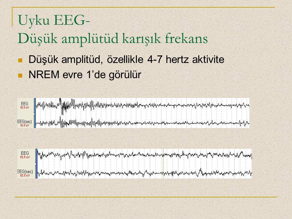 Uyku EEG- Düşük amplütüd karışık frekans Düşük amplitüd, özellikle 4-7 hertz aktivite NREM evre 1'de görülür