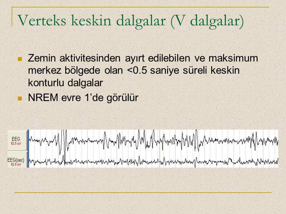 Verteks keskin dalgalar (V dalgalar) Zemin aktivitesinden ayırt edilebilen ve maksimum merkez bölgede olan <0.5 saniye süreli keskin konturlu dalgalar