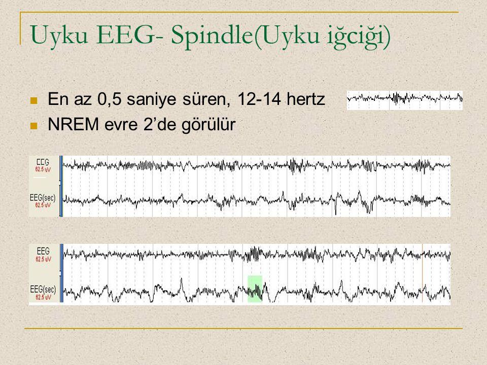 Uyku EEG- Spindle(Uyku iğciği) En az 0,5 saniye süren, 12-14 hertz NREM evre 2'de görülür