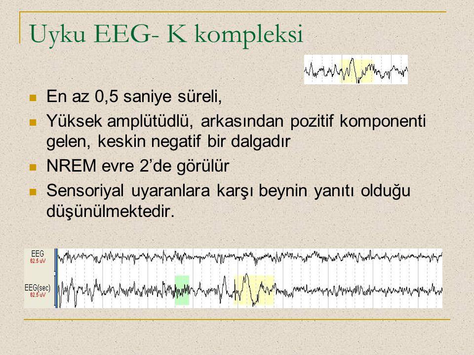 Uyku EEG- K kompleksi En az 0,5 saniye süreli, Yüksek amplütüdlü, arkasından pozitif komponenti gelen, keskin negatif bir dalgadır NREM evre 2'de görü