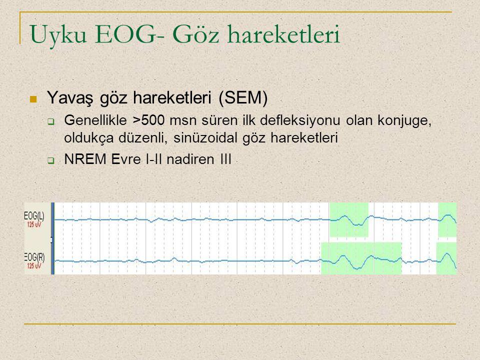 Uyku EOG- Göz hareketleri Yavaş göz hareketleri (SEM)  Genellikle >500 msn süren ilk defleksiyonu olan konjuge, oldukça düzenli, sinüzoidal göz harek