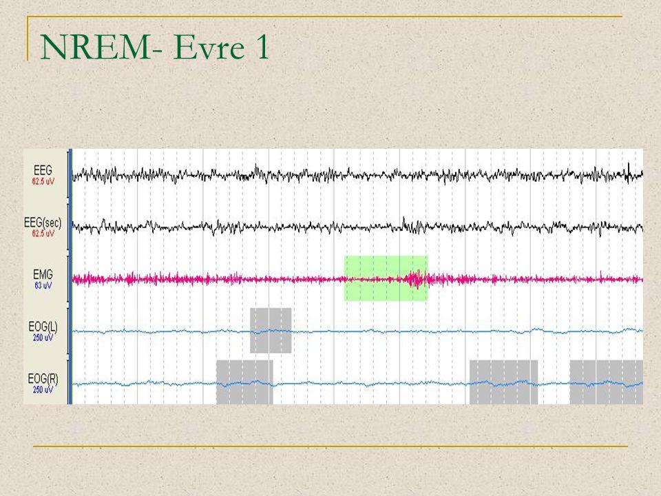 NREM- Evre 1