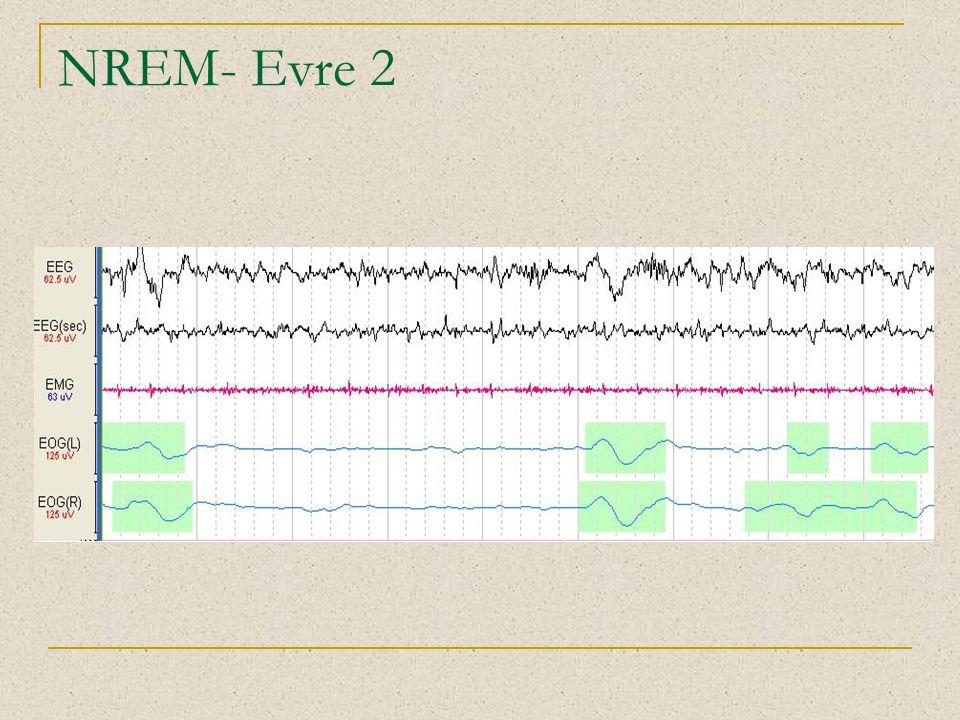 NREM- Evre 2