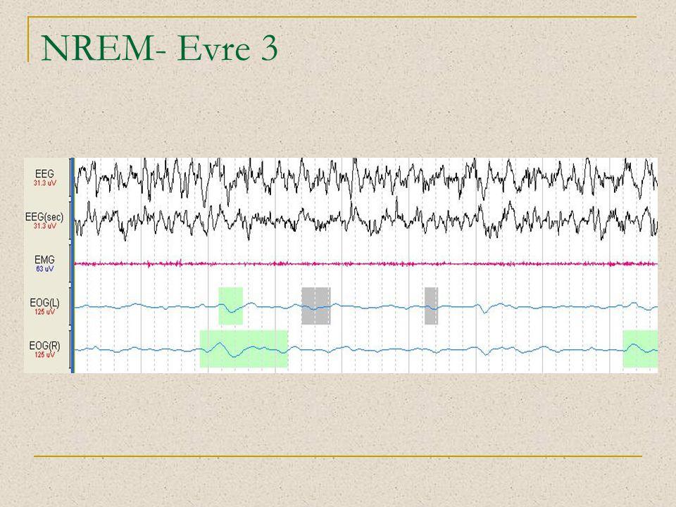 NREM- Evre 3