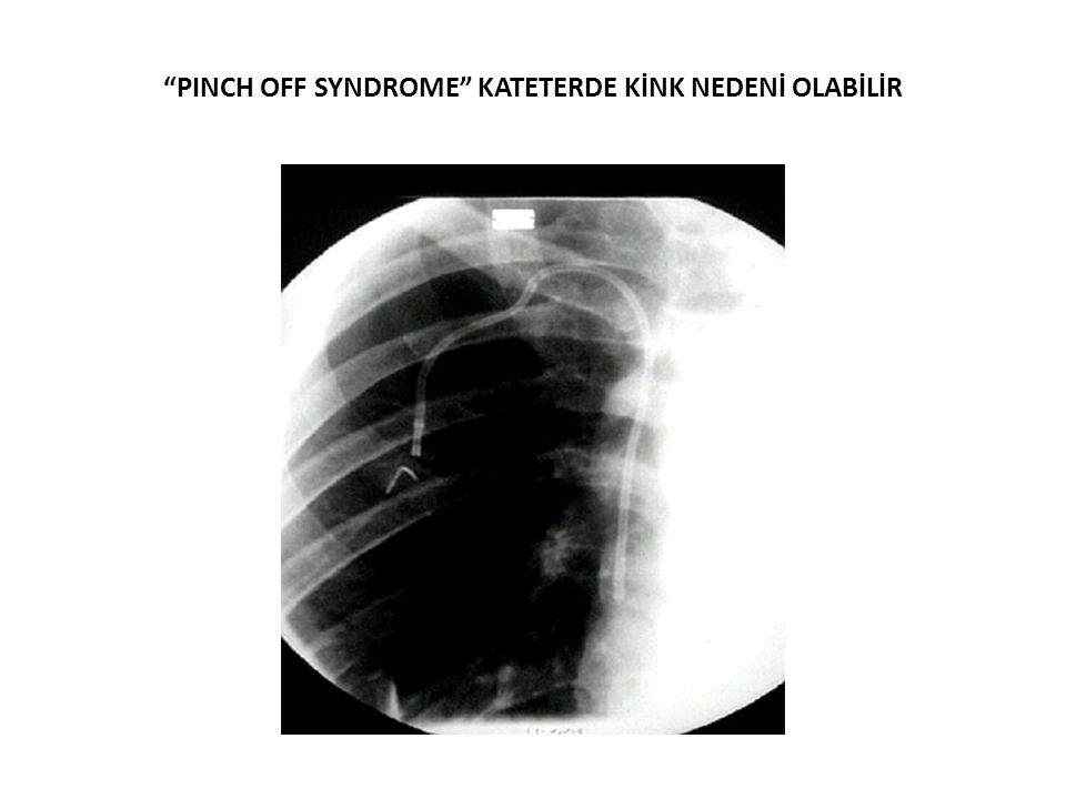"""PINCH OFF SYNDROME"" KATETERDE KİNK NEDENİ OLABİLİR"