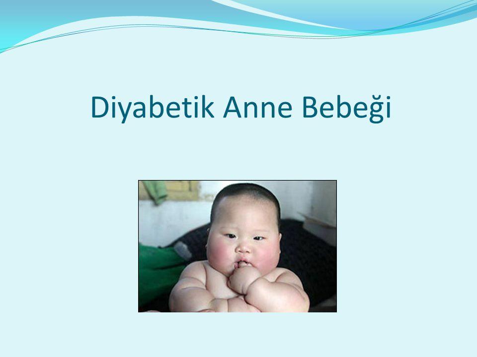 Diyabetik Anne Bebeği