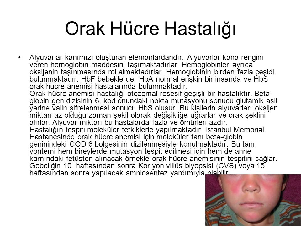 Devam >>>> Türkiye gibi akraba evliliklerinin yoğun olduğu ülkelerde, sakat bebek doğumları çok sık görülmektedir.