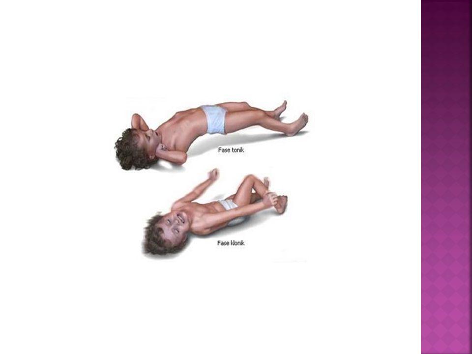  GRAND MAL EPİLEPSİ:  Bilinç kaybı ile ortaya çıkan  Yaygın tonik ve klonik konvülsiyonlarla karakterize bir hastalıktır.