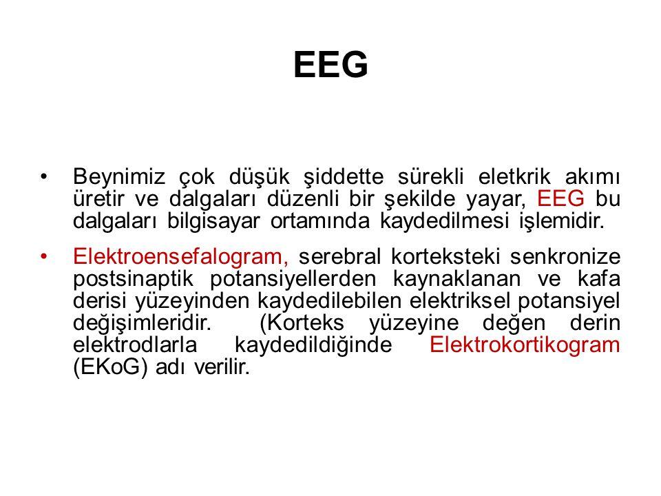 Kalp elektrosuna (EKG) benzetilebilir.