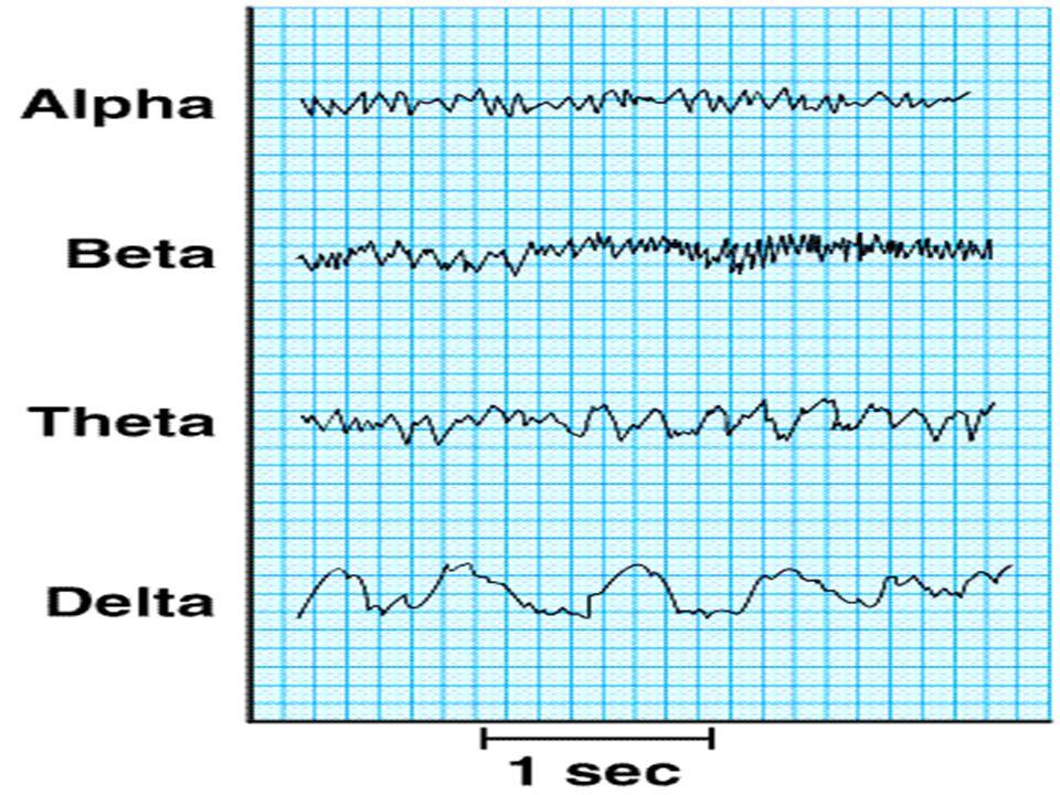 Beynin aktivite düzeyi yükseldikçe, EEG dalgaları frekansı yükselir, genlikleri (amplitude) ise azalır.