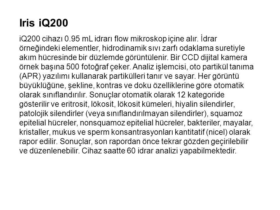 Iris iQ200 iQ200 cihazı 0.95 mL idrarı flow mikroskop içine alır. İdrar örneğindeki elementler, hidrodinamik sıvı zarfı odaklama suretiyle akım hücres