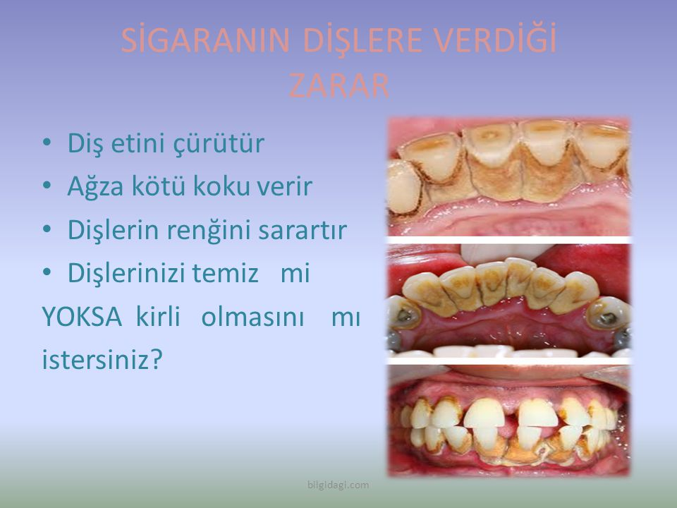 SİGARANIN DİŞLERE VERDİĞİ ZARAR Diş etini çürütür Ağza kötü koku verir Dişlerin renğini sarartır Dişlerinizi temiz mi YOKSA kirli olmasını mı istersin